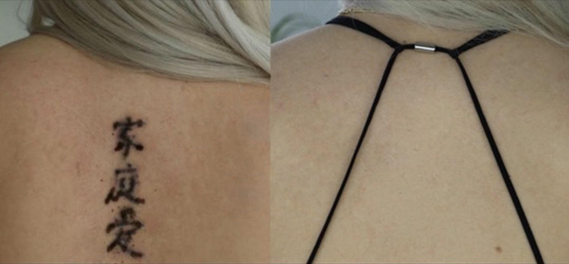 Tatuoinnin Poisto Kokemuksia